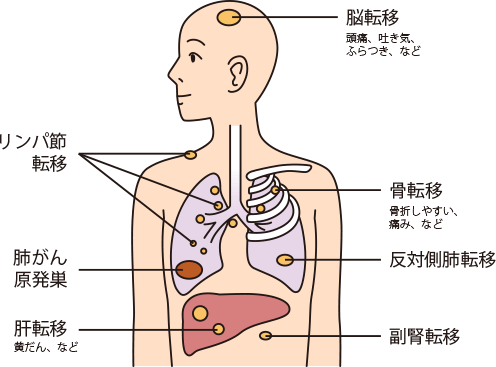 肺 が ん 性 原発 腺